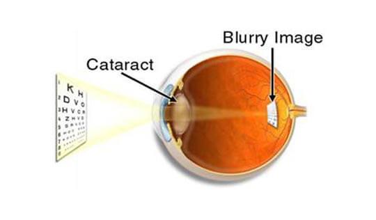 Grover Eye Laser & Ent Hospital in Chandigarh